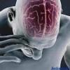 Первые симптомы и признаки инсульта