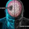 Основные факторы риска инсульта
