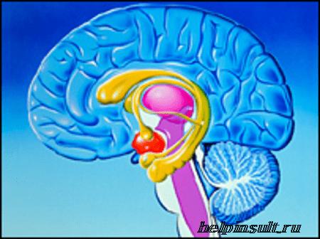 Стволовой и мозжечковый инсульт