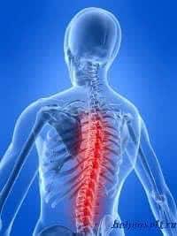 Инсульт позвоночника: причины, симптомы, диагностика, лечение