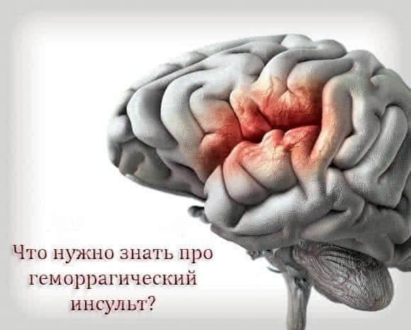 образование геморрагического инсульта