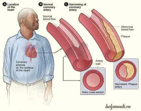 Ишемическая болезнь сердца и стенокардия