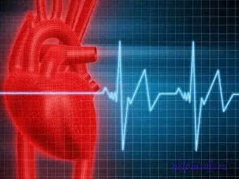 Тахикардия: причины и симптомы заболевания