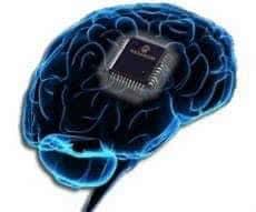 Вживление чипа в мозг