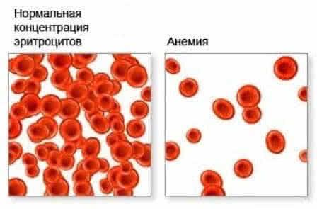 Малокровие-симптомы и лечение