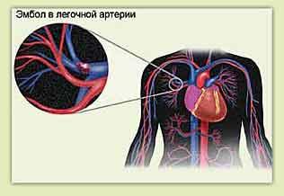Тромбоэмболия легких-симптомы и лечение
