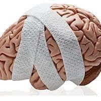 sotryasenie-mozga