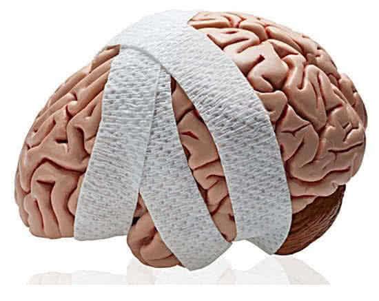 Симптомы и лечение эпидурального кровоизлияния в мозге