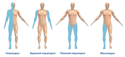 разновидности паралича тела