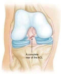 Разрыв крестообразной связки колена-лечение и первая помощь