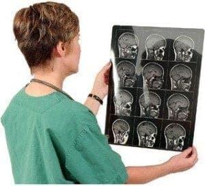диагностика инсульта