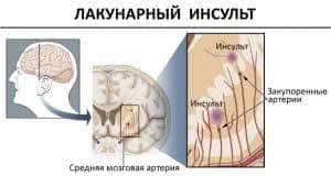 Лакунарный инсульт: симптомы и лечение