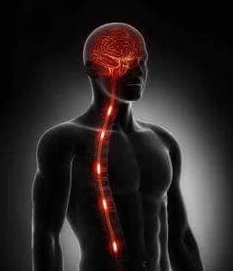 Что делать перенеся инсульт