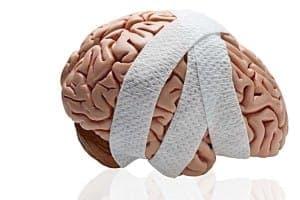 cherepno-mozgovaja-travma-mkb
