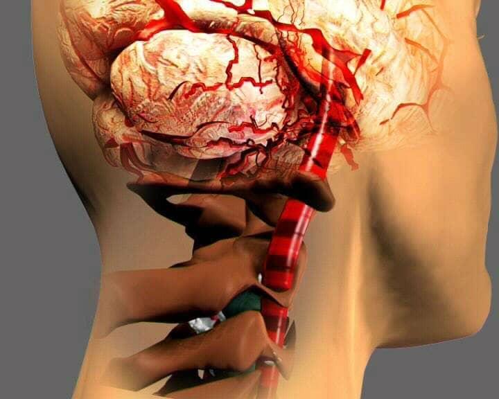 Особенности ишемического инсульта в вертебро-базилярном бассейне