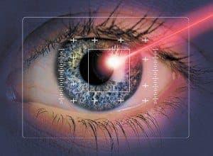 Лазерная коррекция зрения и ее преимущества