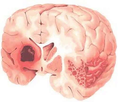 Мозговое субдуральное кровоизлияние: последствия и причины