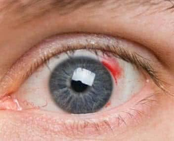 Причины и лечение глазных кровоизлияний