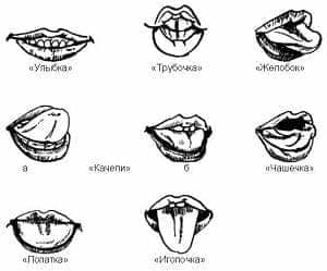 Массаж языка при инсульте