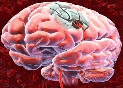 Какие профилактические меры нужны, чтобы предотвратить инсульт