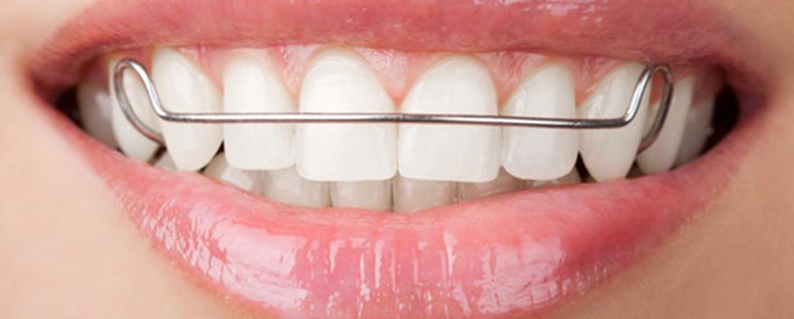 Что такое пластинки на зубы для детей?