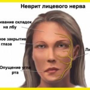 неврит лицевого нерва лечение симптомы фото