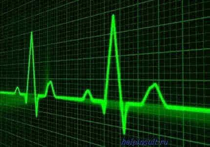 heart-attack1