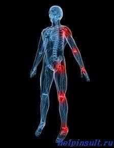 Боли суставов после инсульта