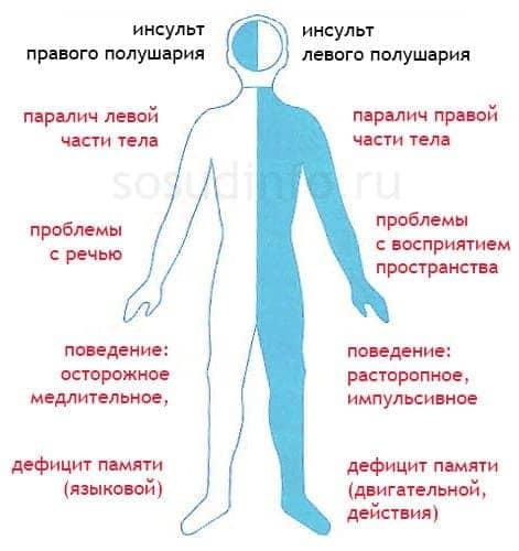 Прогноз при ишемическом и геморрагическом инсульте головного мозга