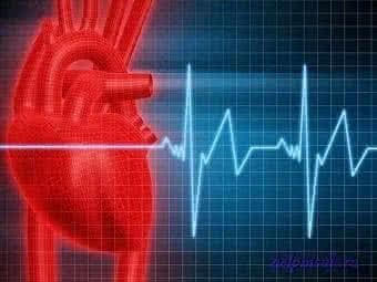 Признаки инфаркта и оказание первой помощи человеку