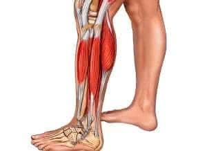 Растяжение икроножной мышцы: что делать при травме?