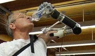 Иновационный роботизированный протез руки «Люка Скайуокера»