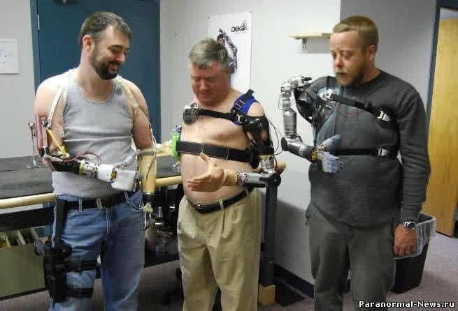 Управляемые силой мысли роботизированные конечности