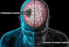 Гематома после инсульта-диагностика и лечение