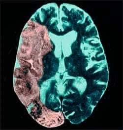 Мозг после инсульта