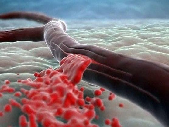 Симптоматика аневризмы в головном мозге