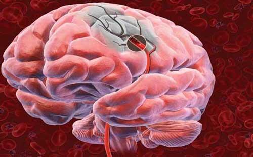 Что такое и чем отличается инфаркт головного мозга