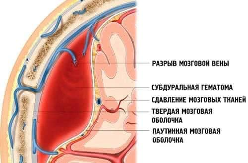 subduralnaya-oboblochka