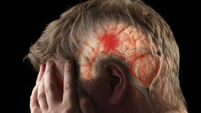 Виды и причины инсультов головного мозга