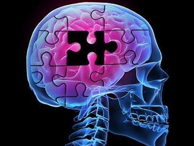 Особенности лечения, симптоматика и последствия инсульта правой стороны