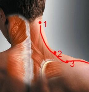 Растяжения мышц шеи: диагностика и лечение